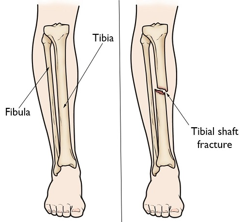 Treatment of the Fractures of the Tibia